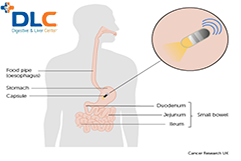 Nội soi ruột non bằng phương pháp nội soi viên nang có gì đặc biệt?