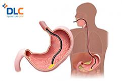 Trước khi nội soi dạ dày có được ăn không?